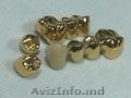 Вакуумные установки для нанесения покрытий под золото на зубные протезы Беларусь